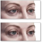 blefaroplastica (1)