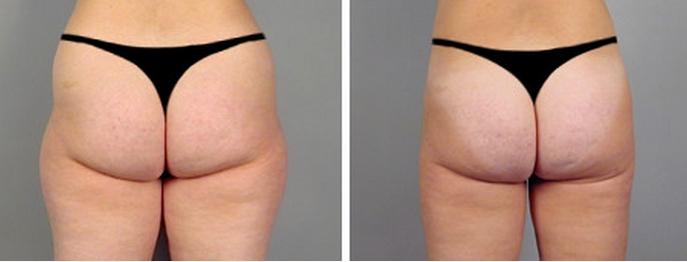 liposuzione-pre-post
